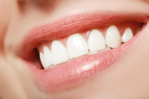 5 Secrets for Achieving the Perfect Smile Perfect Teeth